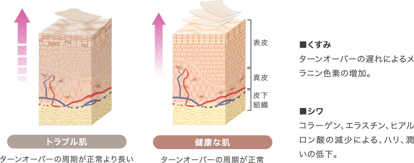 表皮のターンオーバーのイメージ